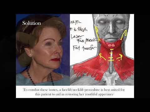 Drastic Face & Necklift Transformation on 70-year-old Female