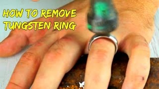 Emergency Removal of a Tungsten Ring