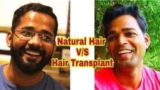 Best Hair Transplant Result in India 2018 || Natural Hair Vs Transplanted Hair