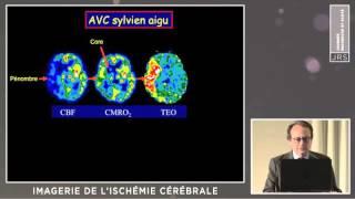Imagerie de l'ischémie cérébrale (J-C BARON)