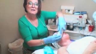 Upper Lip Laser Hair Removal Demo (Miami, FL)