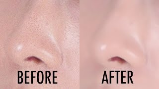 How To Minimize Large Pores | Vivienne Fung