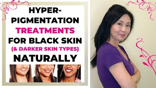 Hyperpigmentation Treatments for Black Skin and Darker Skin Types Naturally