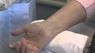 Arterial Kan Gazı Nasıl Alınır?