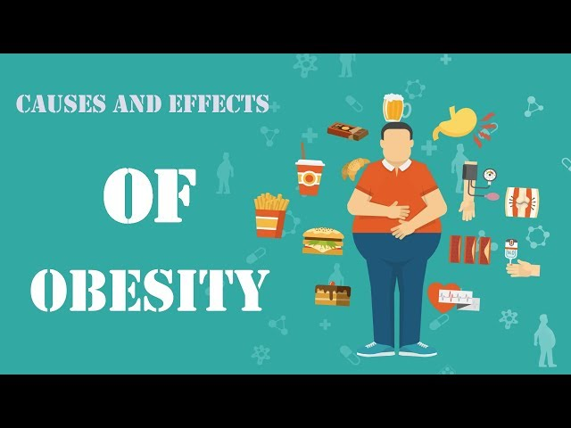 Obesity symptoms: Diabetes ,Sexual Disabilities