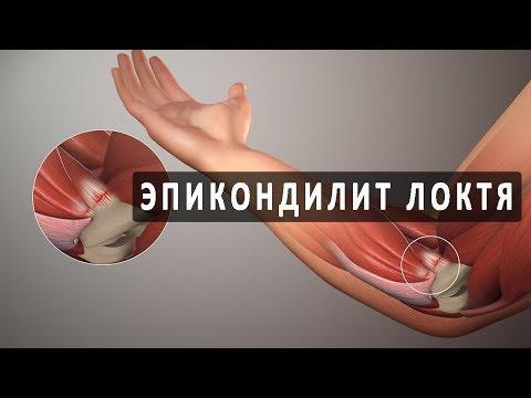 Что такое эпикондилит локтевого сустава?