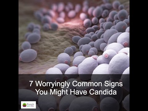 7 Worrrying Common Signs You Might Have Candida