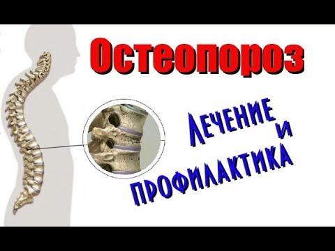 Остеопороз. Лечение и профилактика