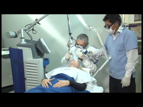 15 Minutos con el Dr. Chávarri - Eliminación de cicatrices con Láser CO2