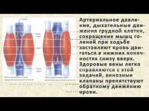 Самое эффективное средство от варикоза на ногах: советы и