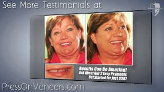 Removable Dental Veneers for 2 Easy Payments