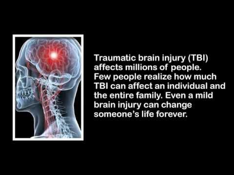 Michigan Traumatic Brain Injury Case Attorney