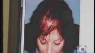 Hair Loss Treatment Gives Women Hope