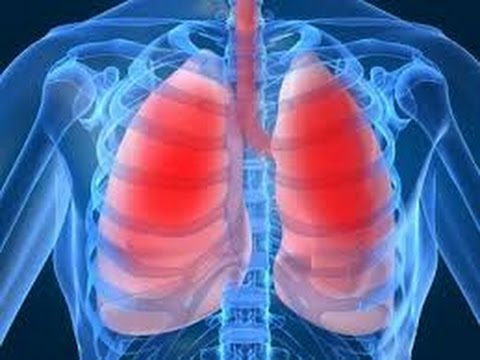 Первичный туберкулёз / Симптомы и диагностика туберкулёза