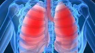 Туберкулез, туберкулез легких
