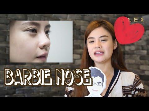 รีวิวความประทับใจหลังเสริมจมูก Barbie Nose ทรง Barbie Line ที่ Dr. Alex Aesthetic Clinic