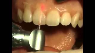 Гингивопластика(Гингивопластика – это одна из процедур хирургической стоматологии, которая применяется для структурного..., 2015-10-06T15:57:00.000Z)
