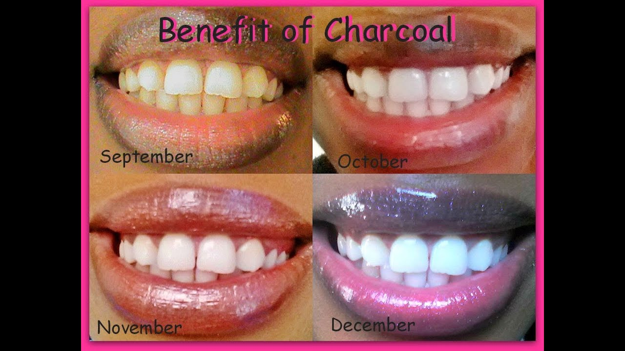 Naturally Whiten Teeth Instantly Cha Chingg Update Youtube