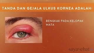 Keratitis, Suatu Peradangan atau Inflamasi yang Terjadi pada Kornea Mata.