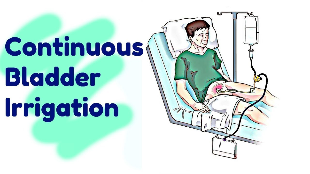 Continuous Bladder Irrigation - YouTube