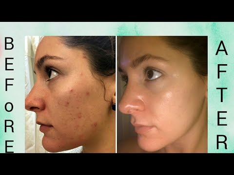 Beauty Tips For Anti Marks   Beauty Tips  Easy To Clear Anti Marks