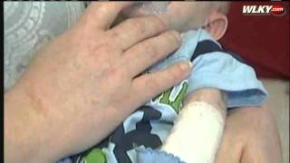 Newborn Battles Rare Genetic Skin Disorder