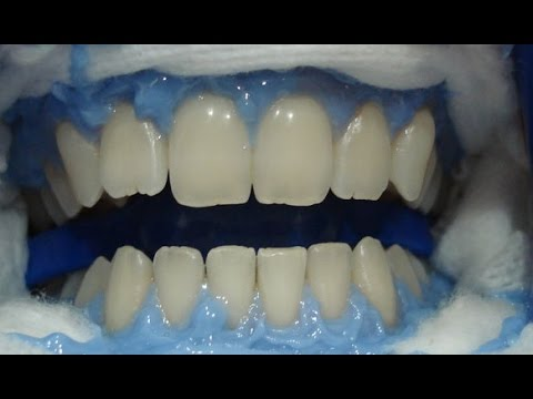 Clareamento Dental Como Clarear Os Dentes Do Jeito Certo Youtube