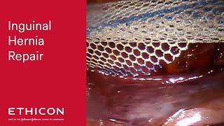 LAP Inguinal Hernia Repair TAPP with ULTRAPRO ADVANCED™ Mesh & STRATAFIX™ Spiral (Dr. Steven Leeds)