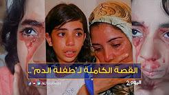 طفلة الدم..الدم يخرج من عينيها وأذنها وجلدها