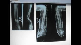 Fracture Of Radius & Ulna