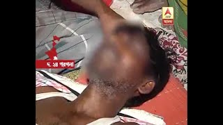 The person Ruthlessly Tortured in suspicion of thief at Joynagar