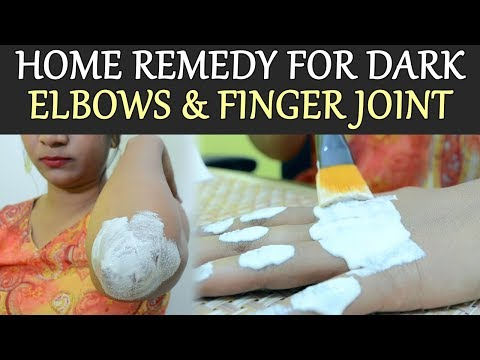 Dark Elbows & Finger Joints: Home Remedies | How to lighten Dark Elbows & finger joints | Boldsky