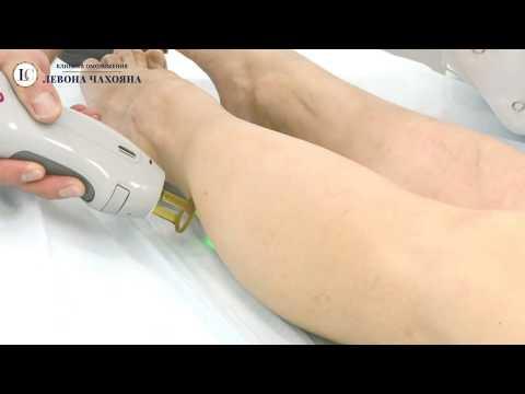 Лазерная эпиляция александритовым аппаратом CANDELA GentleLase Pro