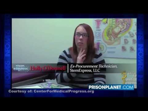 HORROR  ABORTED BABY MOVES ARMS  LEGS OUTSIDE WOMB IN LATEST PLANNED PARENTHOOD VIDEO   YouTube