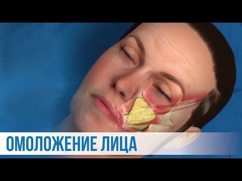 Омоложение лица: Эндоскопический лифтинг лица (подтяжка лица) Пластический хирург -Андрей Ворошкевич