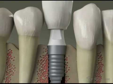 educational video - implant.mp4