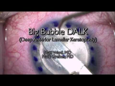Big Bubble DALK