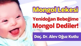 Yenidoğan Bebeğime Mongol (Down Sendromu) Dediler! Mongolluk ile Mongol Lekesi Arasındaki Fark