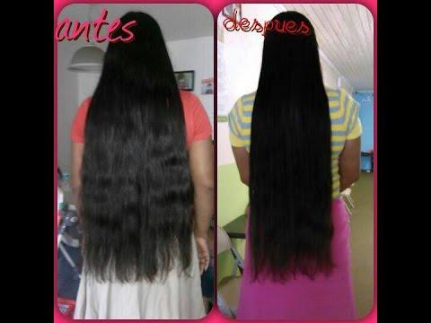 Los medios para el cuidado de la piel después de la depilación los cabellos que han arraigado