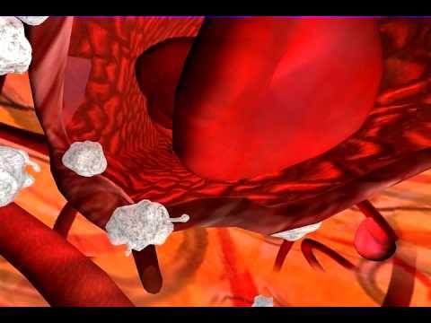 Blood vessel repair