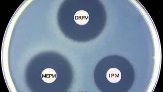 carbapenems doripenem mechanism of action