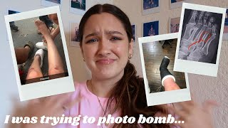 how i broke my foot in the stupidest way possible... *i'm an idiot* | STORYTIME