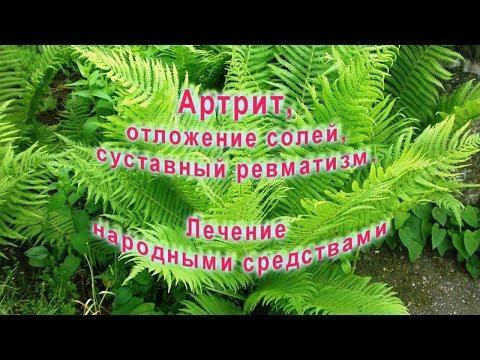 Артрит, отложение солей, суставный ревматизм  Лечение народными средствами