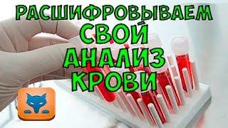 видео Как расшифровать анализ крови? Расшифровка анализа крови у детей и взрослых