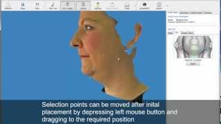 Chin augmentation simulation - chin implants or reduction results before cosmetic plastic surgery