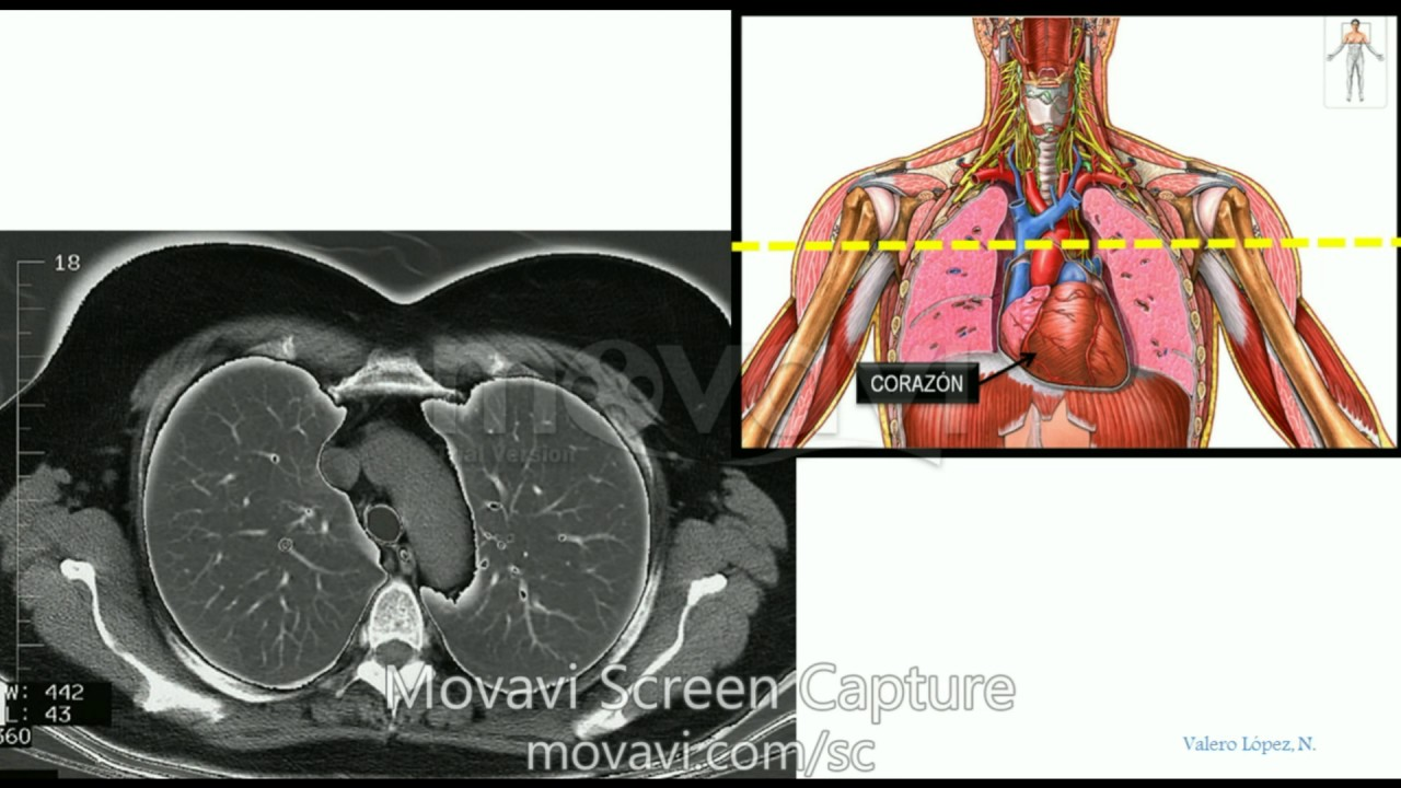 TAC TC Tórax, torácico. Identificar estructuras anatómicas en corte ...