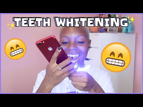 ✨WHITTENING MY TEETH AT HOME FT SMILE DIRECT | LASH SALE | AM I ENGAGING IN VLOGTOBER ?✨ | T