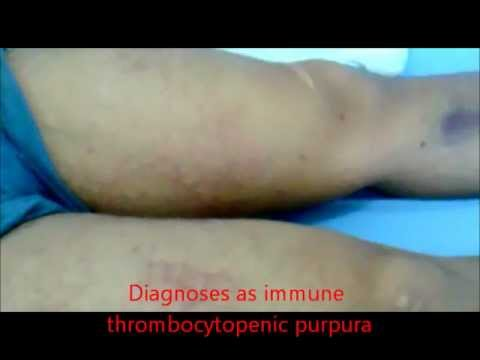 immune thrombocytopenic purpura
