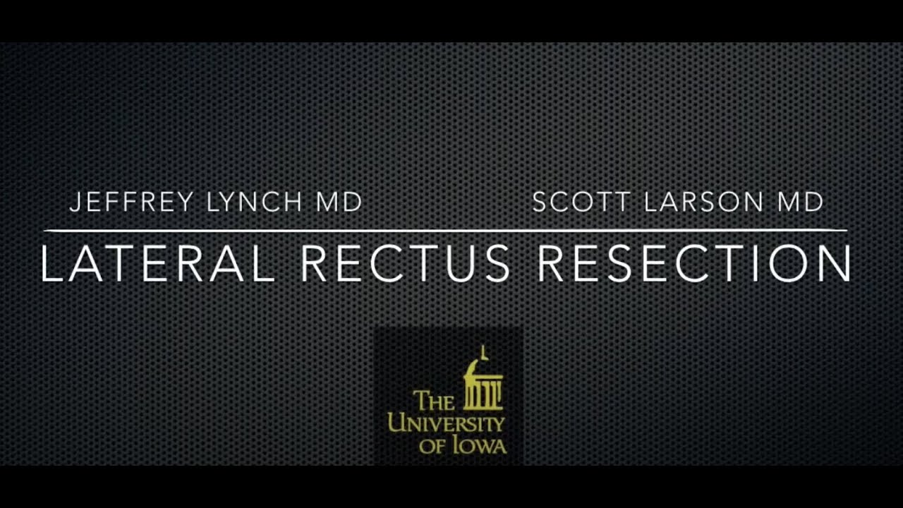 Lateral Rectus Resection Surgery - YouTube