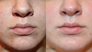 My Personal Microdermabrasion Experience - Pictures & Demo